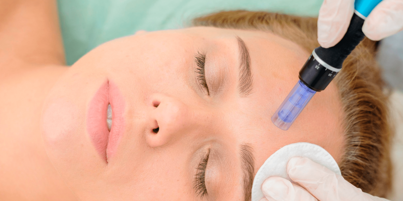 Microneedling treatments fitness med spa
